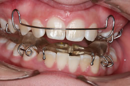 Twin Block Orthodontic Plate